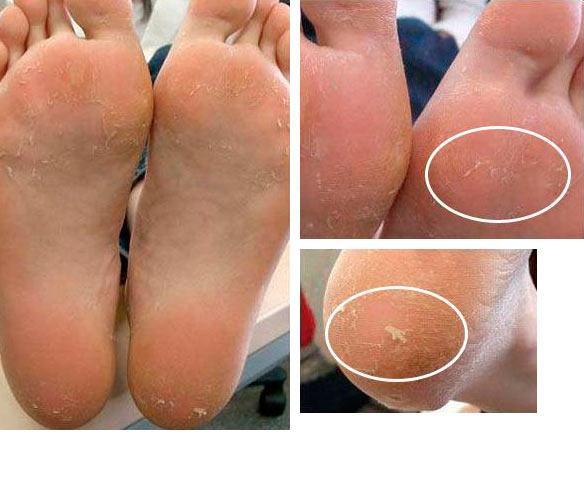 Маска-носки для ног Skinlite SL-725